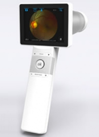 MOBILE FUNDUS CAMERA